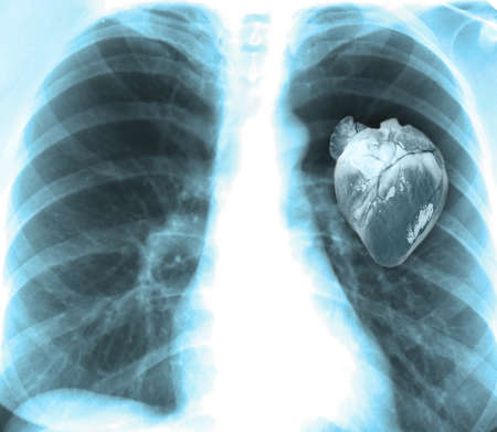 roentgen: Human x-ray with heart, close-up