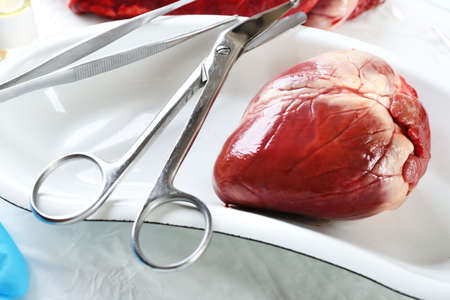 amputation: Heart organ in medical metal tray with tools on table close up Stock Photo