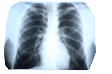 radiological: X-ray of human chest isolated on white