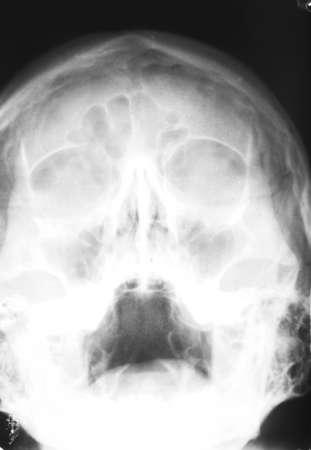 x rays negative: X-ray of human skull, closeup Stock Photo