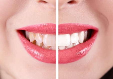 Lächelnde Frau, die Zähne: vor und nach dem Konzept