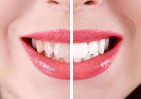 woman in white: Smiling woman, teeth: before and after concept