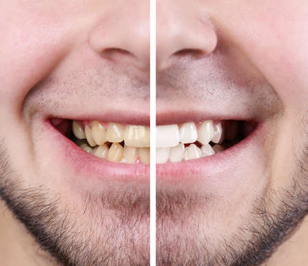 Smiling man: before and after concept Foto de archivo
