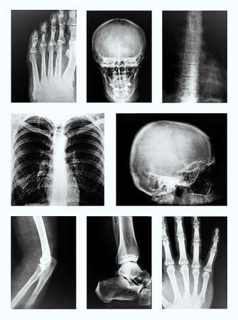 preventing: Collage of many X-rays