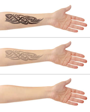 tattoo arm: Tattoo on male hand. Laser tattoo removal concept