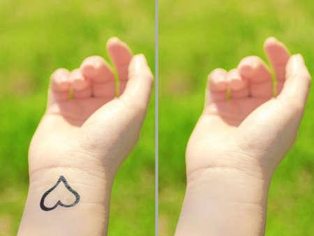 Tattoo auf der Hand Frau. Laser-Tattoo-Entfernung Konzept Lizenzfreie Bilder