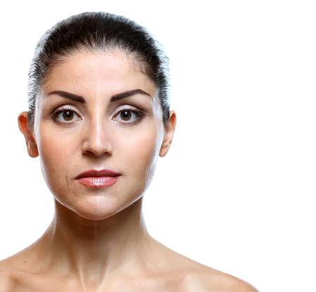 Volto di donna prima e dopo la procedura cosmetica. Concetto di chirurgia plastica