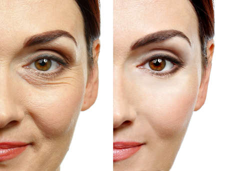 Frauengesicht vor und nach kosmetischen Eingriffen. Konzept der plastischen Chirurgie. Standard-Bild