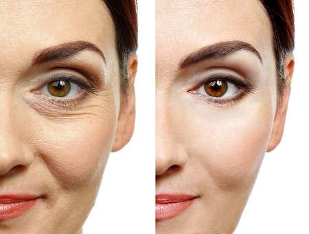 Fronte della donna prima e dopo la procedura cosmetica. Concetto di chirurgia plastica. Archivio Fotografico