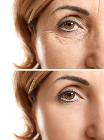 Rijp vrouwengezicht vóór en na kosmetische procedure. Plastische chirurgie concept.