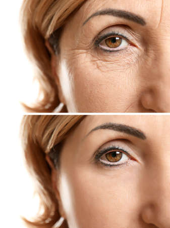 Visage de femme mature avant et après procédure cosmétique. Concept de chirurgie plastique.