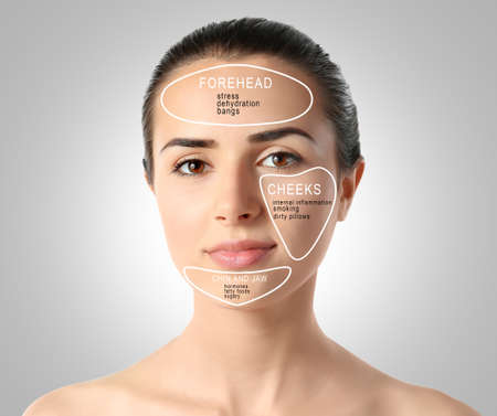 Young woman with acne face map on gray background. Skin care concept Stock Photo