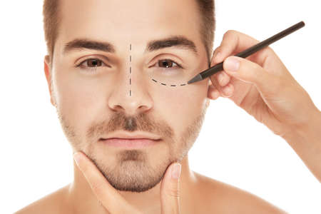Surgeon drawing marks on male face against white background. Plastic surgery concept