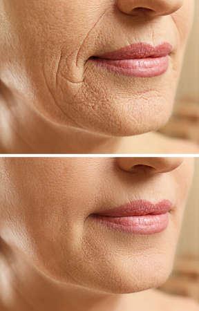 熟女の顔は化粧品の手順の前後に。整形外科のコンセプトです。 写真素材