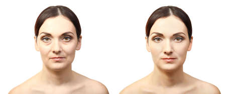 Woman face before and after cosmetic procedure. Plastic surgery concept. Stock Photo