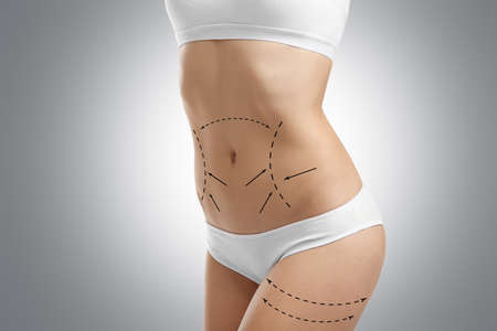Young female body with marks for plastic operation, gray background. Liposuction concept Banco de Imagens