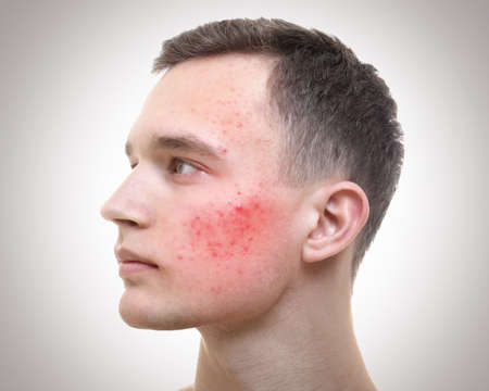 Skin care concept. Young man with acne on light background