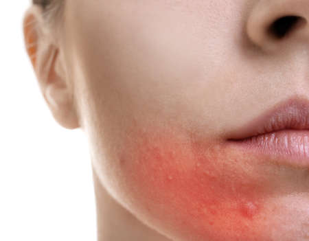 Skin care concept. Young woman with acne, closeup