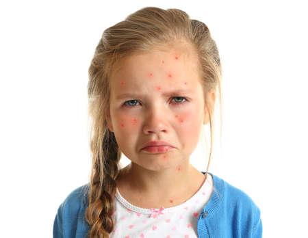 Petite fille aux boutons rouges sur fond blanc. Concept de varicelle Banque d'images