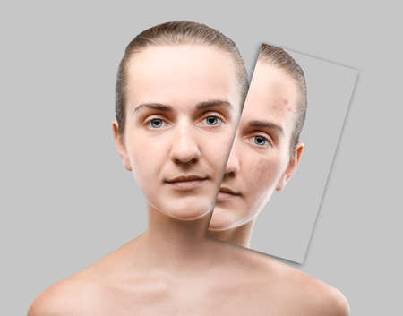 Acne and skin care concept. Young woman before and after cosmetic procedure on gray background