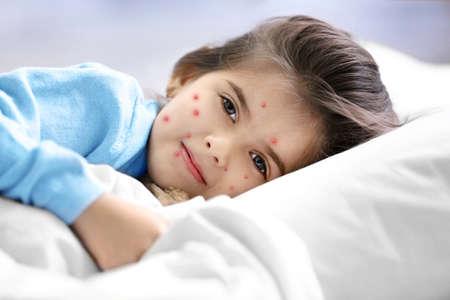 Petite fille avec des boutons rouges au lit à la maison. Notion de varicelle