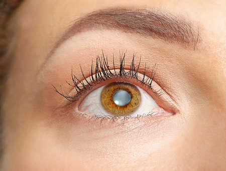 白内障のコンセプトです。若い女性の目には、クローズ アップ