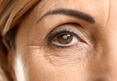 백 내장 개념입니다. 수석 여자의 눈, 근접 촬영 스톡 콘텐츠