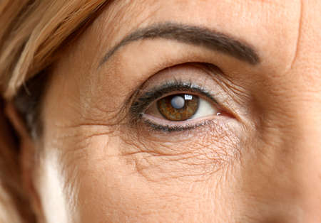 Cataract concept. Senior womans eye, closeup Stock Photo