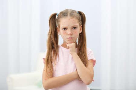 Petite fille aux boutons rouges à la maison. Concept de varicelle
