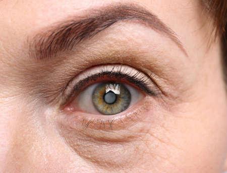 白内障の概念。シニア女性の目、クローズアップ 写真素材