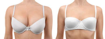 Donna prima e dopo la correzione delle dimensioni del seno su sfondo bianco. Concetto di chirurgia plastica% 00 Archivio Fotografico - 91108142