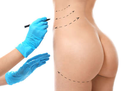 Surgeon drawing marks on female body before plastic operation, white background. Liposuction concept