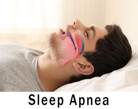 Snore problem concept. Illustration of obstructive sleep apnea Stock Photo