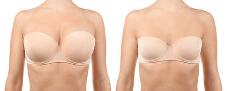 Woman before and after breast size correction on white background. Plastic surgery concept Stock Photo