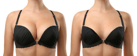 Woman before and after breast size correction on white background. Plastic surgery concept 写真素材