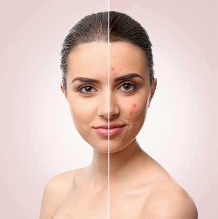 Frauengesicht vor und nach der Aknebehandlung. Hautpflegekonzept.
