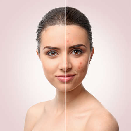 Visage de femme avant et après la procédure de traitement de l'acné. Concept de soins de la peau.