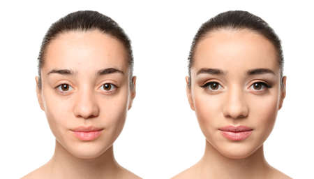 Young woman before and after makeup application on white background