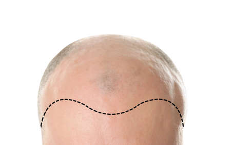 Hair loss concept. Bald man on white background