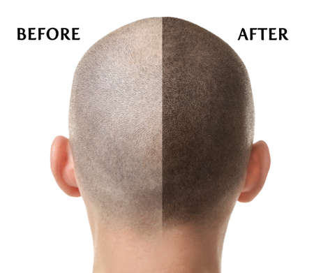 白い背景に脱毛治療の前後の男性 写真素材