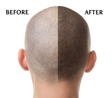 Man voor en na haaruitval behandeling op witte achtergrond Stockfoto