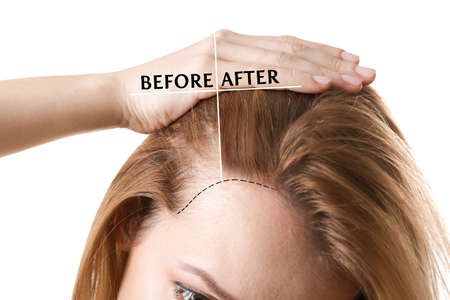 Woman before and after hair loss treatment on white background