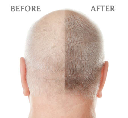 Senior man before and after hair loss treatment on white background