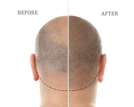 Man before and after hair loss treatment on white background Фото со стока - 91470057