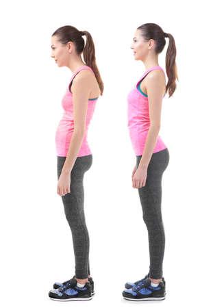Concetto di riabilitazione. Collage di donna con una cattiva e buona postura su sfondo bianco