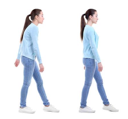 Concetto di riabilitazione. Collage di donna con cattiva e buona postura su sfondo bianco