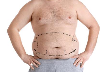 Gewichtsverlies concept. Man met gemarkeerde vetprobleemgebieden op lichaam, witte achtergrond% 00 Stockfoto