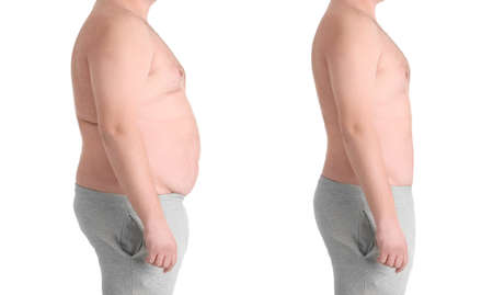 Male body before and after weightloss on white background. Health care and diet concept