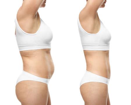 Giovane donna prima e dopo la perdita di peso su sfondo bianco% 00 Archivio Fotografico