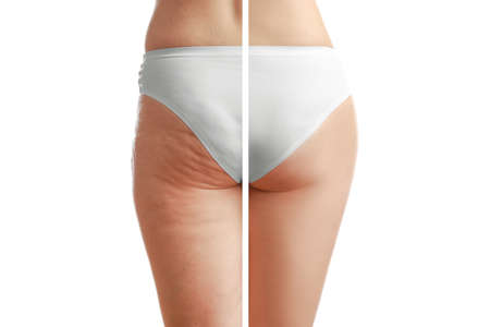 Young woman body before and after anti cellulite treatment on white background